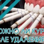 Можно ли курить после удаления зуба?