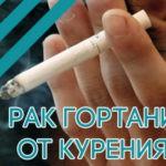 Рак гортани от курения: как он развивается?